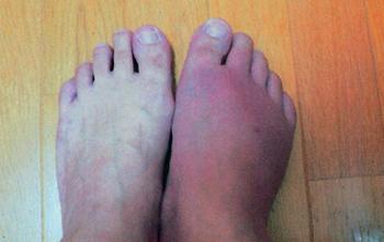 180411痛風の足.jpg